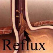 a reflux betegség tünetei és kezelése